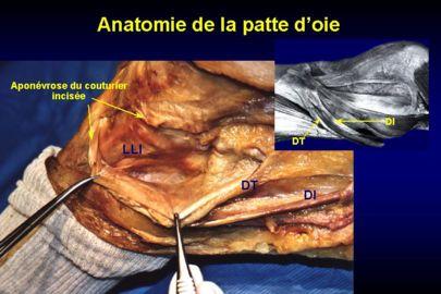 Anatomie de la patte d oie for Garage patte d oie